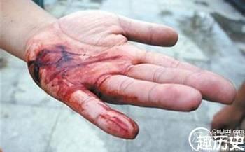 伤口流血图片_你给的伤口在流血