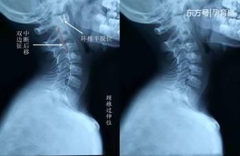 颈椎寰枢关节检查