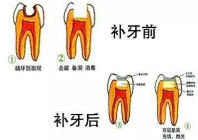 可怕的 龋齿 发展进程