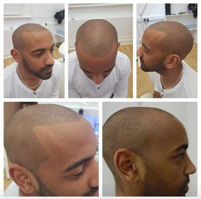 SMP纹发  为什么美国是研究治疗脱发领域的领先者,而他们却选择了它SMP纹发      1什么是纹发: 国际名称SMP的英文全写为Scalp Micro Pigmentation即头皮微色素沉着,最早期是以色列发明,以对付皮肤色斑问题,后期被美国人改良发展成纹发,这是一种利用色素,染色于头皮表皮层的技术,着色完成后,观感有如头发毛囊一样,秃顶人士可以做出仿真小平头(寸头,光头),稀发人士可以加密到浓密效果,不用打针,吃药,后期无需护理。  2.