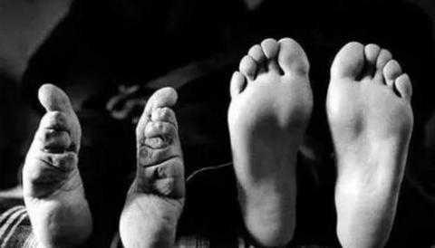 裹小脚的现代人_裹小脚与现代脚!
