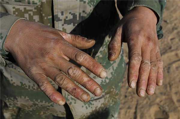 年轻的中国军人,却有着苍老而伤痕累累的手,最后一张最令人起敬
