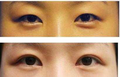 那种平行双眼皮甚至是欧式双眼皮的