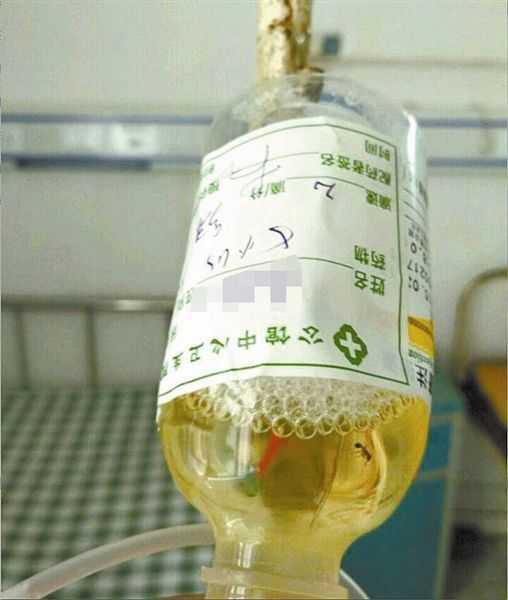 患者输液时 吊瓶中发现蚂蚁