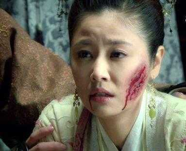 盘点电视剧中被毁容的女星,赵丽颖最惨,最后一张最假