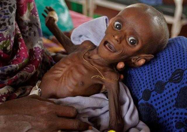 看非洲难民儿童凄惨的生活和饥饿的现状图片