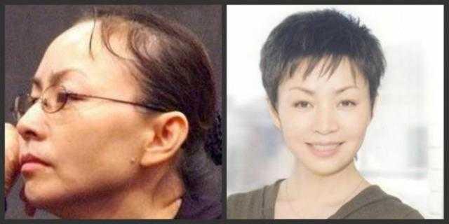 如果杨幂要去植发,是否要捎带上这些明星?